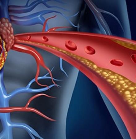 Холестерол: Наистина ли знаете всичко за него